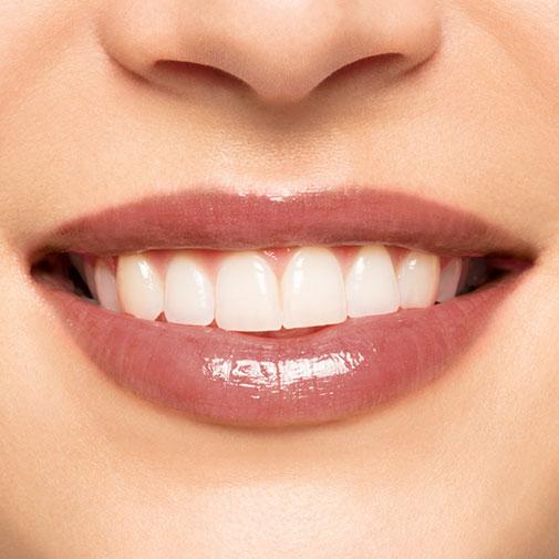 Błyszczyk Natural Lip Perfector